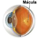 DMAE_macula_cast